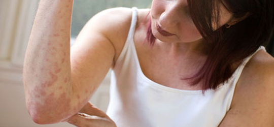 Eczema skin disease causes cure natural treatment for Tattoos and eczema