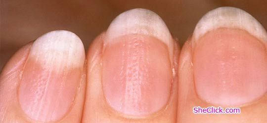 Split Nails Causes, Cure and Home Treatment - SheClick.com